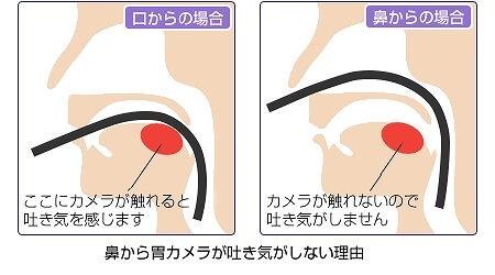 経鼻内視鏡、経口内視鏡を選べます